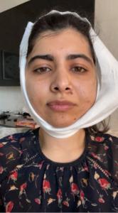 Малала Юсуфзай после операции